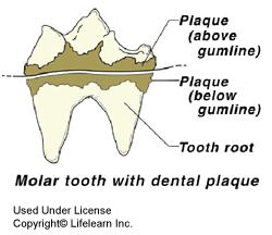 dental_disease1